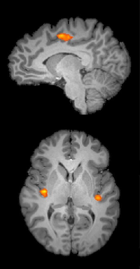 fMRI ile beyinin ağrı duyan bölgelerinin fotoğrafı çekildi