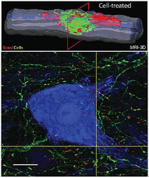 omurilik zedelenmesi-kök hücre tedavisi-gerçek bilim