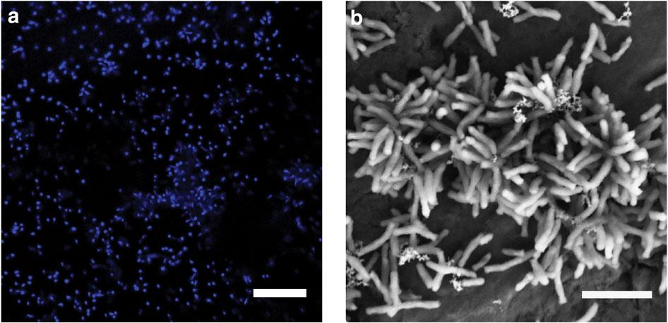 elektron alan demir oksitleyen fototropik bakteri