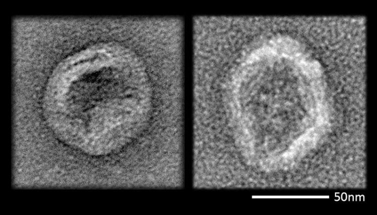virüs dna nano parçacık-Gerçek Bilim-Credit Gizmag