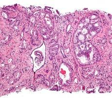 prostat omega3