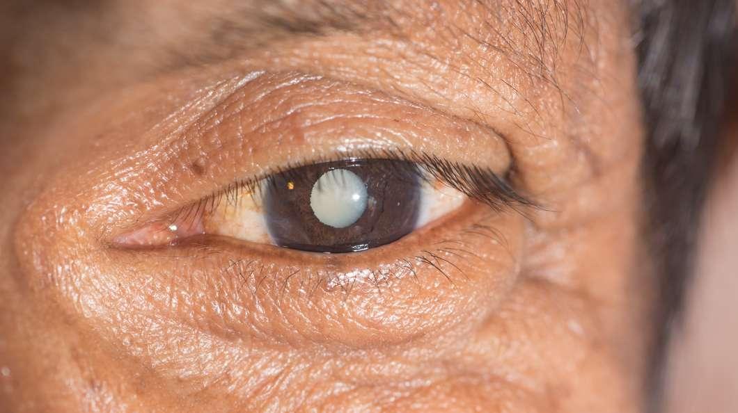 eye-drop-cataract@2x