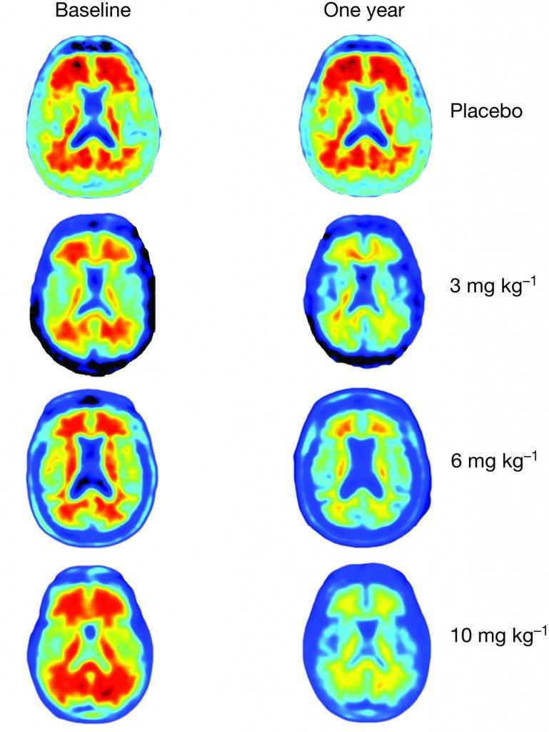 Alzheimer tedavisi ilacı