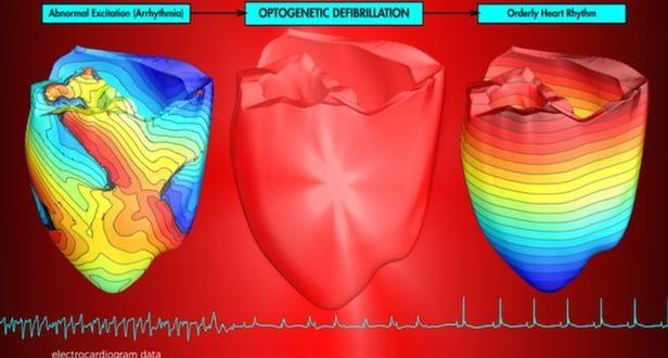 Acı Verici Elektrik Şokları Yerine Işık Pulsları İle Kalp Ritim Bozukluğu Düzeltildi