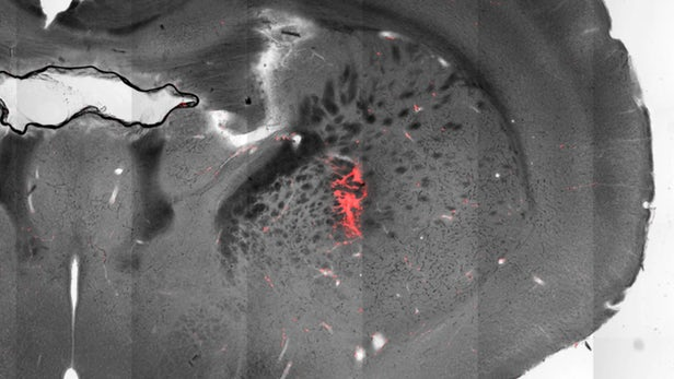 Fareleri Kontrol Etmek İçin Beyinlerine Magnet Yerleştirildi