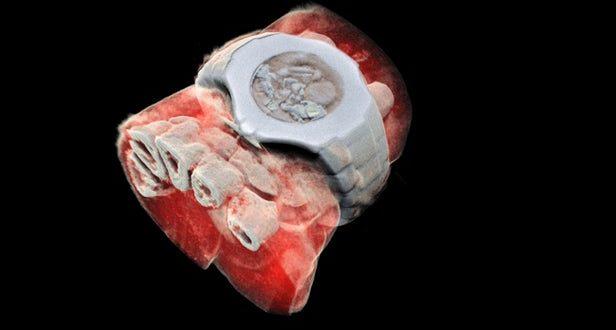 CERN için Geliştirilen Çip Sayesinde 3D Renkli Röntgen Keşfedildi
