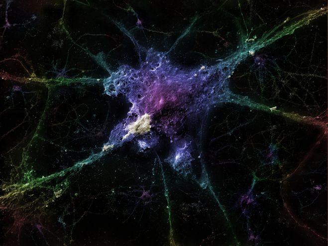 Alzheimer 'lı nöron
