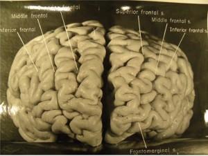 Patolog Harvey Took tarafından çekilen fotoğrafta Einstein' ın prefrontal korteksi (hafıza ve bilişsel yeteneklerin artışıyla ilişkilendiriliyor) sıradışı bir şekilde kıvrımlı. Beynin sağ tarafında 4 büyük çıkıntı görülüyor. Normal insanlarda bundan sadece üç tane bulunuyor.