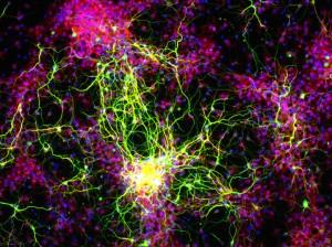 alzheimer ve kök hücreler