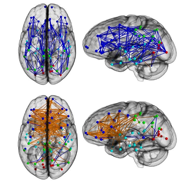 erkek ve kadın beyni arasındaki fark-gerçek bilim