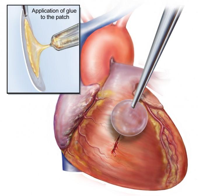 kalp yapıştırıcısı-gerçek bilim