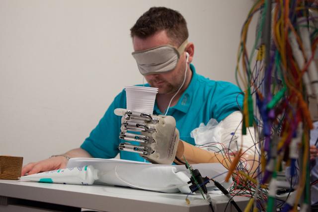 ilerleme yapay kol hissediyor-gerçekbilim
