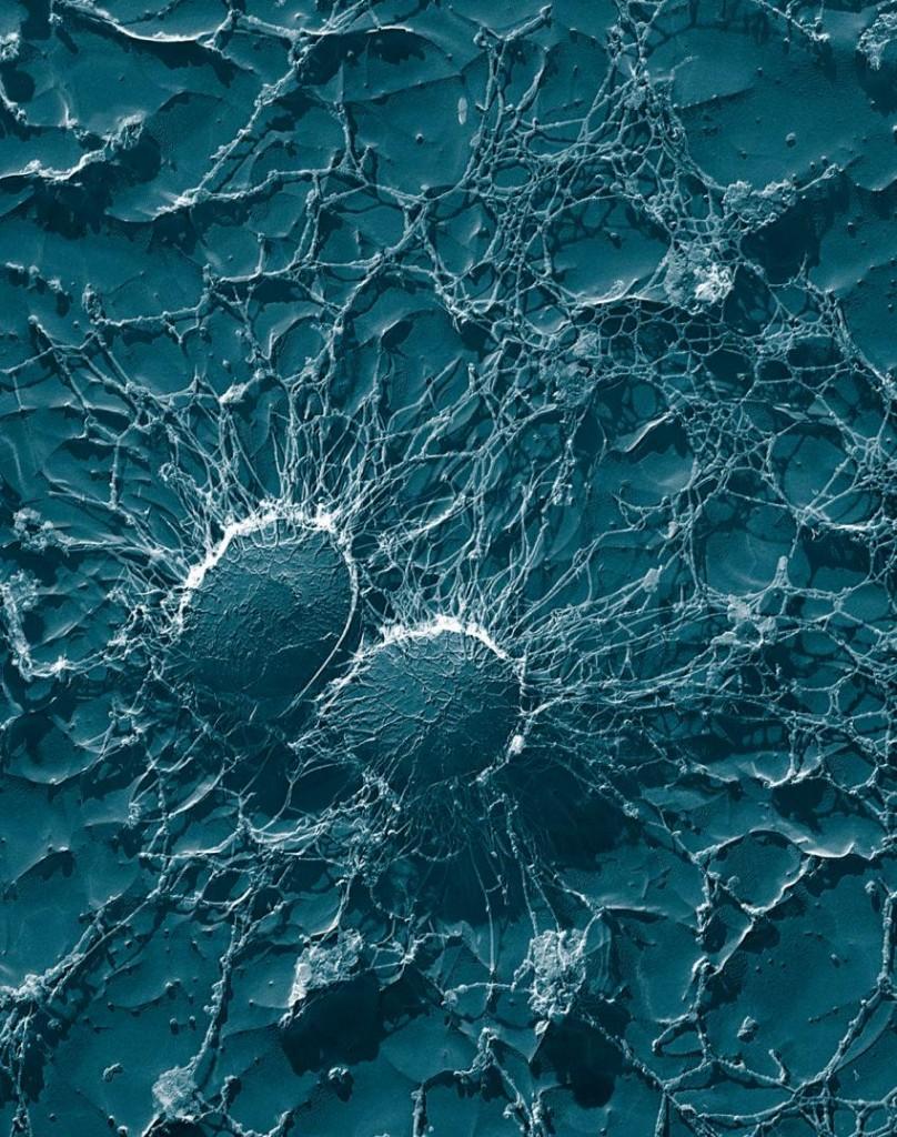 antibiyotik yerine nanolizozom