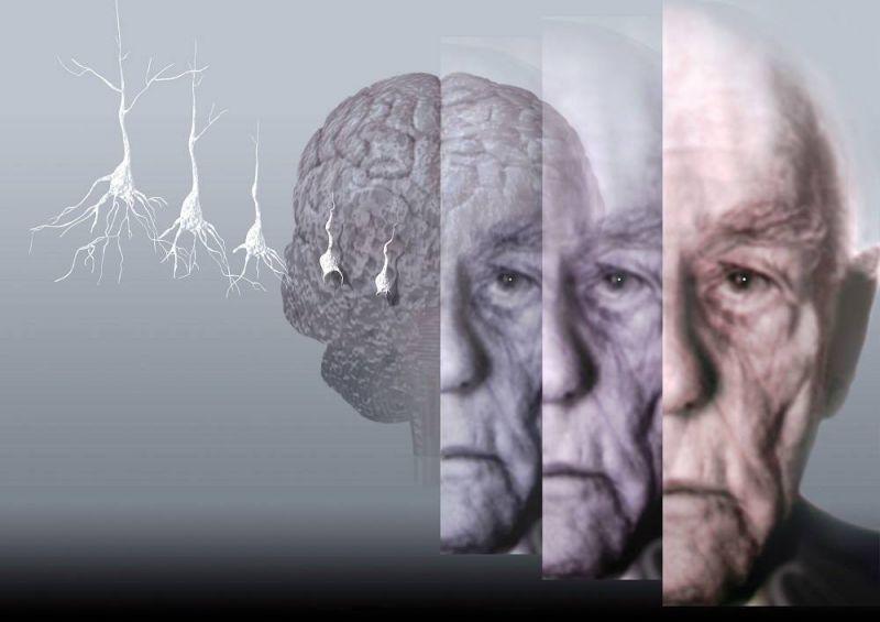 alzheimer-yayginlasiyor