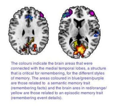 beyin tipleri