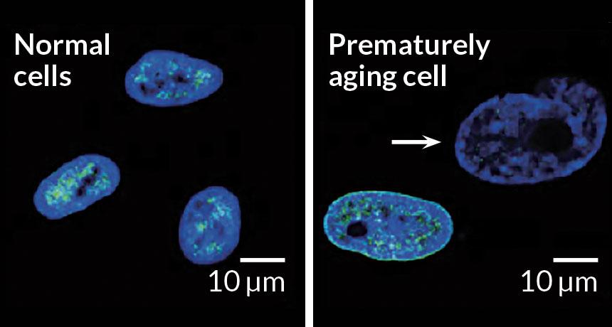 normal hücre yaşlı