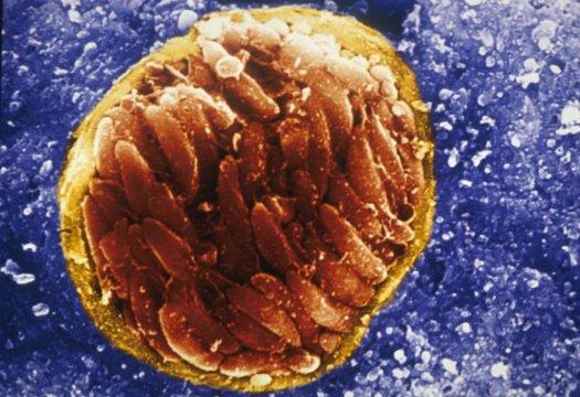 toksoplazma gondii
