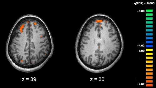 Şizofreni Tedavisi İçin Umut Veren Gelişme