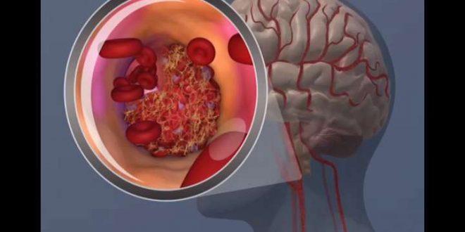 İnme Hastalarında İlaçlar Beyne Nano-parçacıklarla Taşınabilir