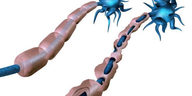 Farelerde Beyin Hücresi Nakliyle MS Hasarı Tedavi Edildi